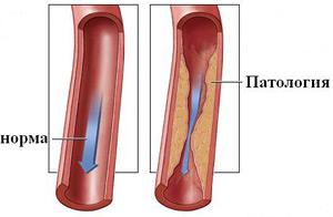 Эндартериит сосудов нижних конечностей, Лечение