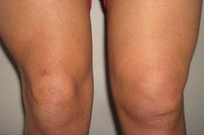 Синовит коленного сустава | симптомы и лечение | фото