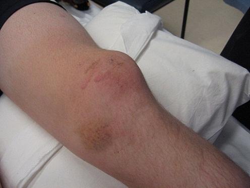 Вывих коленной чашечки у человека | лечение | фото
