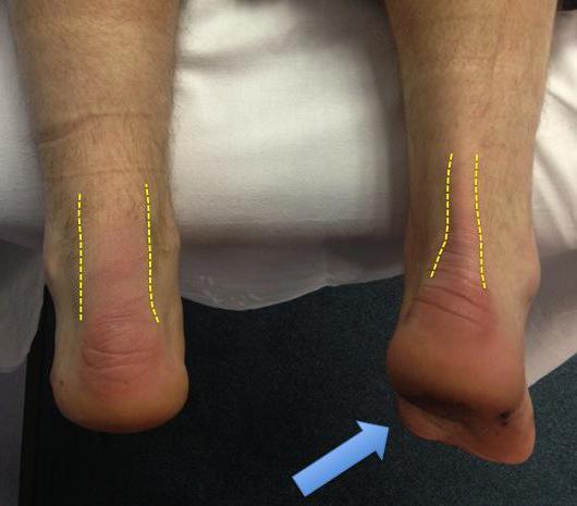 Разрыв ахиллова сухожилия реабилитация после операции