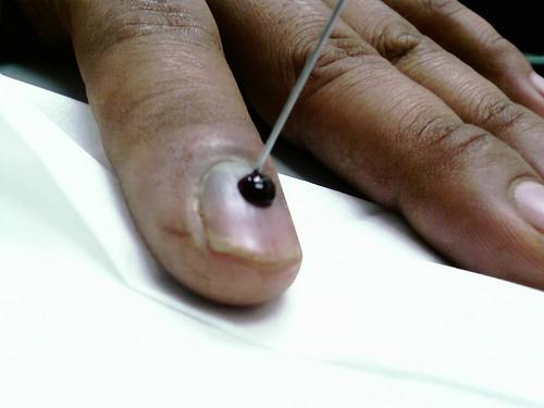 От грибка на ногтях препараты