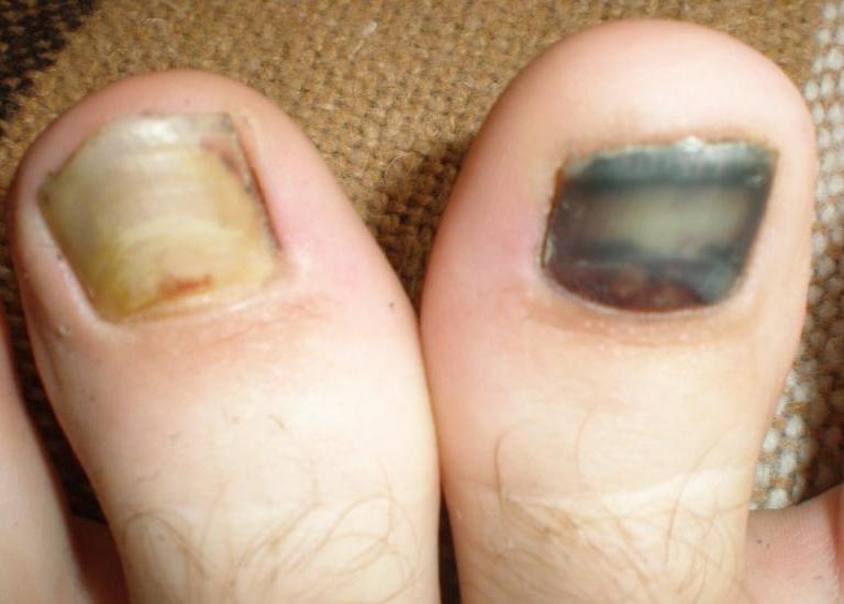 У меня ноготь на ноге стал чернеть 8