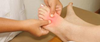 Боль в ногах при сахарном диабете