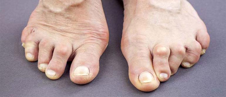 Изображение - Проблемы с суставами симптомы revmatoidnyj-artrit