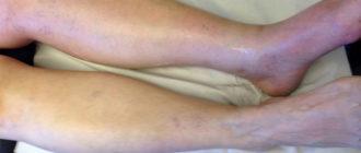 Тромбоз глубоких вен ног