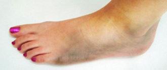 Гангрена ноги