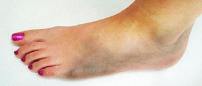 Как умирают от гангрены ноги