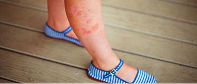 Сепсис на ноге