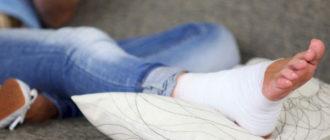 Сильный ушиб ноги