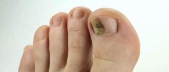 Ушиб ногтя на ноге