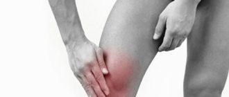 Аллергический артрит