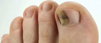 Синяк под ногтем на ноге