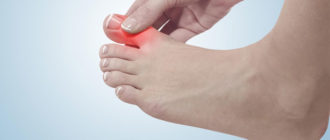 Вывих пальца на ноге
