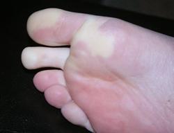 Болезнь Рейно: фото