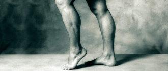 Артериит ног