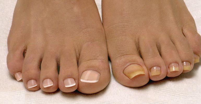 почему желтеют ногти